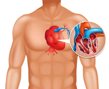 sintoma: Heart cancer in human illustration