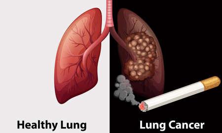 persona fumando: Pulmonar sana contra el c�ncer de pulm�n diagrama de ilustraci�n