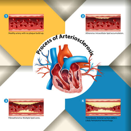 plaque: Process of Arteriosclerosis poster illustration