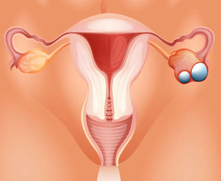 woman vagina: Overian cancer diagram in detail illustration