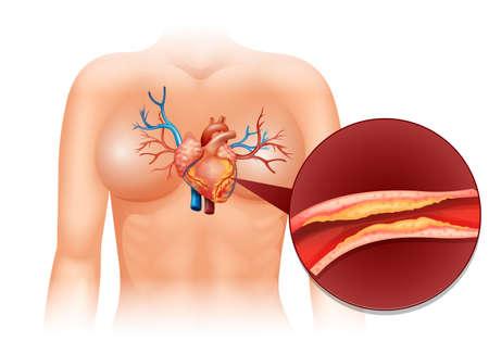 partes del cuerpo humano: Corazón cholesteral en humano ilustración