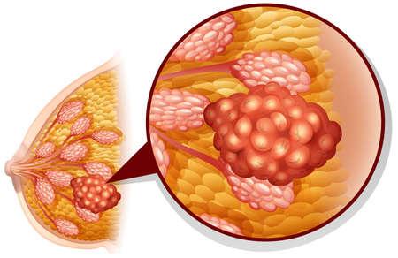 cancer de mama: El c�ncer de mama en la ilustraci�n blanca