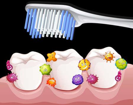dientes sucios: Las bacterias entre los dientes cuando cepillado ilustración