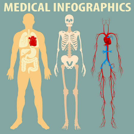 heart disease: Medical infographic of human body illustration