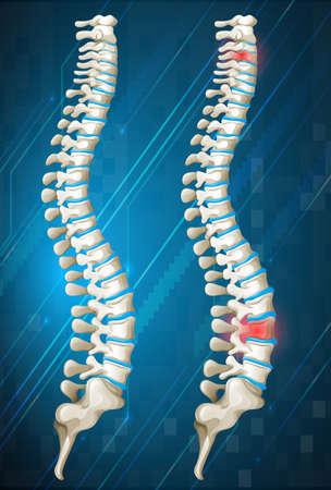 Human spines with red inflamed on one illustration