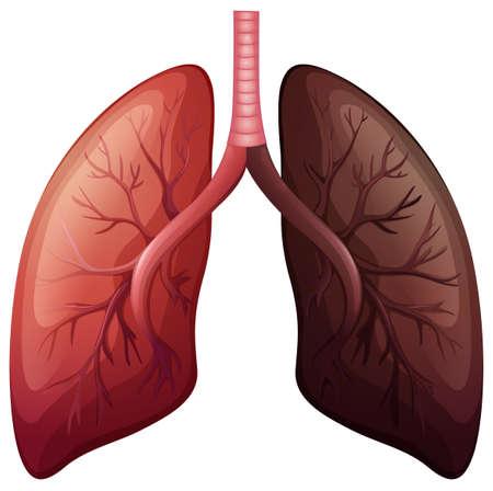 persona fumando: Diagrama de cáncer de pulmón en la ilustración gran escala