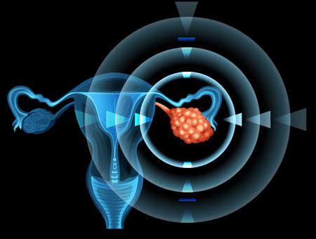 El cáncer en el ovario de la mujer ilustración Foto de archivo - 44789840
