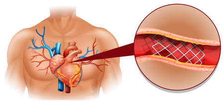 focus: Heart disease diagram in human illustration