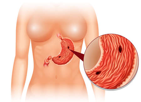 ulcer: Stomach Ulcer diagram in woman illustration Illustration