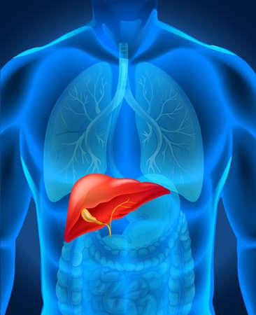 Caner del hígado en la ilustración cuerpo humano
