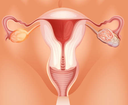 ovarian cancer: Ovarian tumor in woman illustration