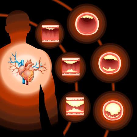 Colesterol Corazón en la ilustración cuerpo humano Foto de archivo - 44806341