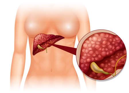 higado humano: C�ncer de esclerosis en la ilustraci�n del cuerpo humano