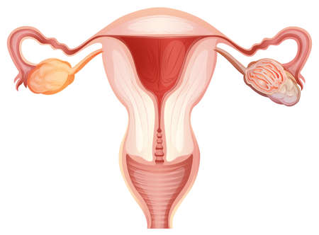 ovarian: Ovarian cancer in woman illustration