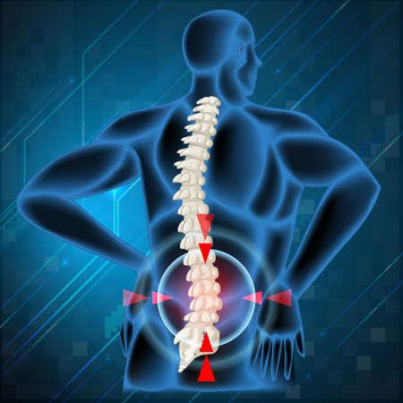 pain: Spine bone showing back pain illustration