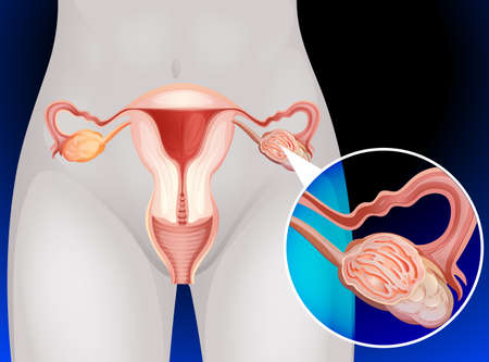 ovarian cancer: Female genitals of human illustration