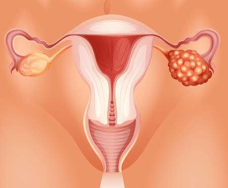 genitali: Il cancro ovarico nella donna illustrazione Vettoriali
