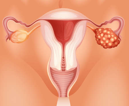 ovarian cancer: Ovarian cancer in woman illustration