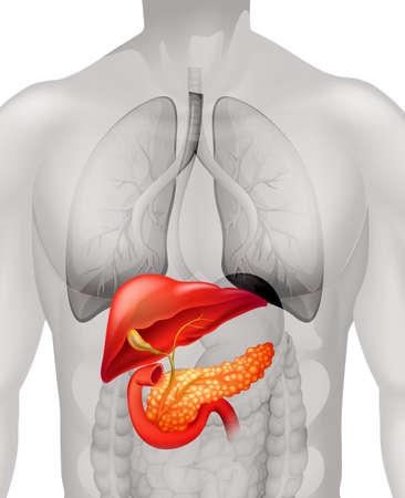 human anatomy: Pancreas cancer in human illustration