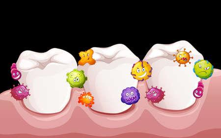 dientes sucios: Las bacterias en la ilustración dientes humanos Vectores