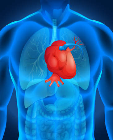 heart disease: Heart disease diagram in human illustration