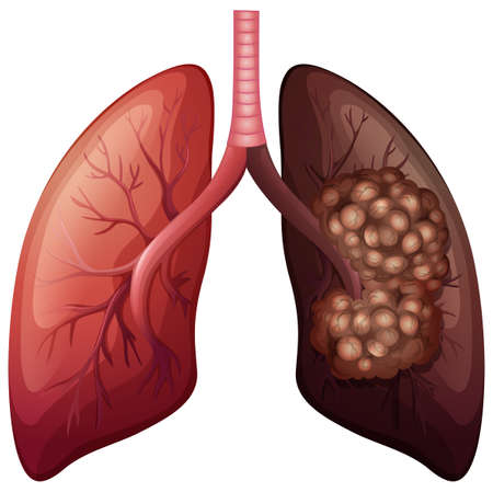Normal lung and lung cancer illustration Çizim