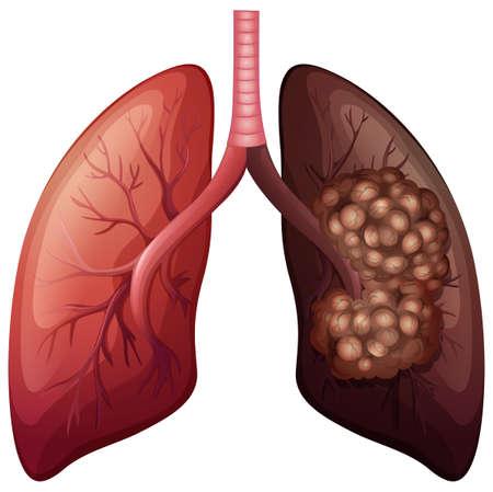 persona fumando: Pulmonar normal y la ilustraci�n del c�ncer de pulm�n Vectores