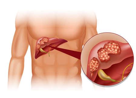 Le cancer du foie dans l'illustration humaine