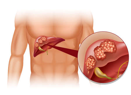 human liver: Liver cancer in human illustration