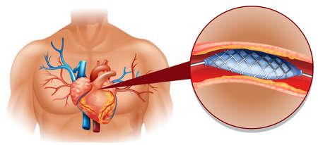 disease: Treatment of heart cancer illustration Illustration