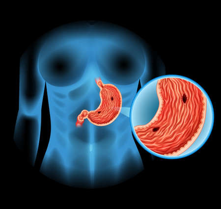 Stomach Ulcer diagram in human illustration