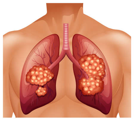 lung cancer: Lung cancer in human illustration