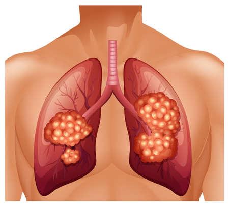 symptom: Lung cancer in human illustration