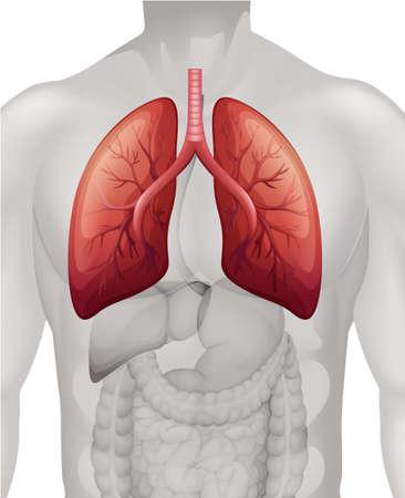 persona respirando: Diagrama de cáncer de pulmón en la ilustración humana