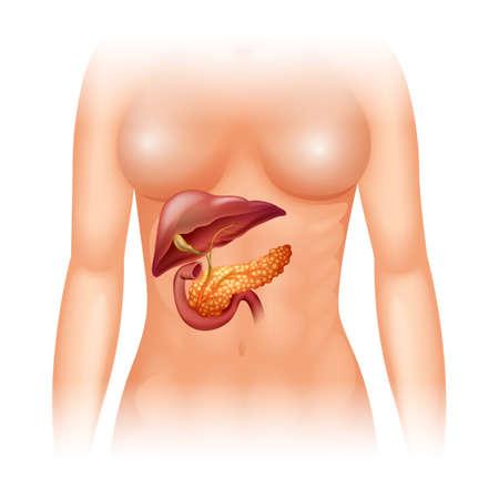 trzustka: Rak trzustki w ludzkiej ilustracji Ilustracja