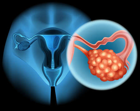 Ovarian cancer in human illustration