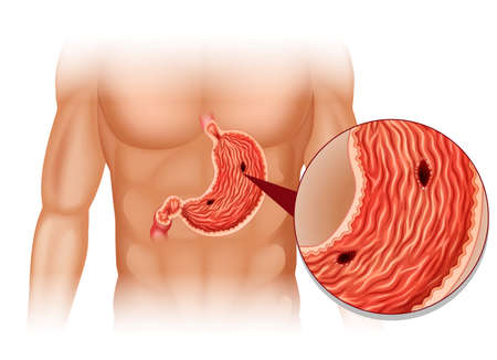 human body: Stomach Ulcer in human body illustration