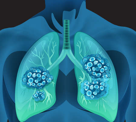 human body: Lung cancer in human body illustration