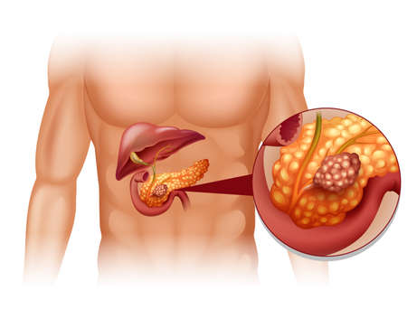 human body: Pancreas cancer in human body illustration