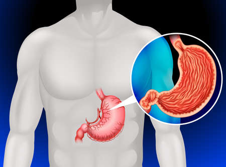 stomach cancer: Stomach cancer in human illustration Illustration