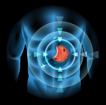 ulc�re: L'ulc�re gastrique chez l'homme illustration du corps
