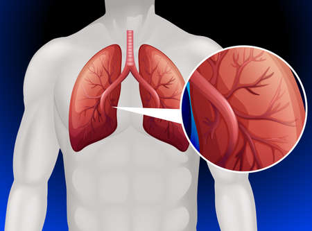 Lung cancer in human body illustration