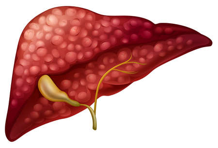 pancreatic cancer: Sclerosis cancer in human illustration