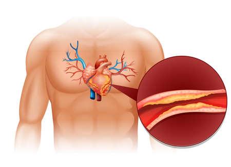 human heart: Corazón cholesteral en la ilustración cuerpo humano