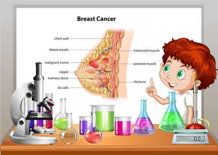 childhood cancer: Boy in science class explaining breast cancer illustration Illustration