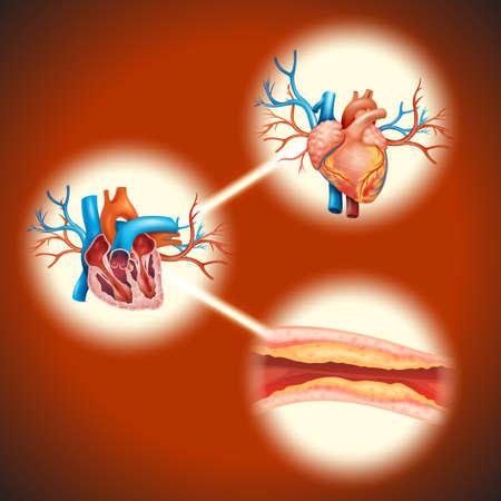 human heart: Cholesteral en la ilustración del corazón humano Vectores