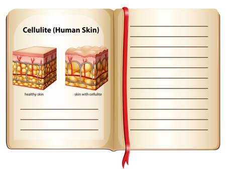 cellulit: Narancsbőr emberi bőr alá illusztráció