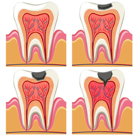 Tooth decay diagram in details illustration
