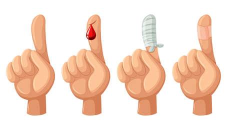 lesionado: Dedo con el corte y vendajes ilustración Vectores