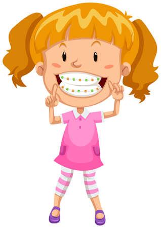 braces: Little girl with braces illustration